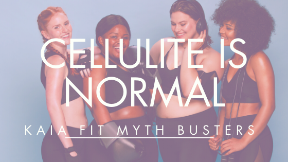 Myth Busters: Cellulite IS Normal